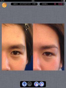 眉毛比較画像1