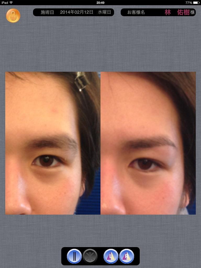 『自分に本当に似合う眉』を見つけ出す画像診断プログラム
